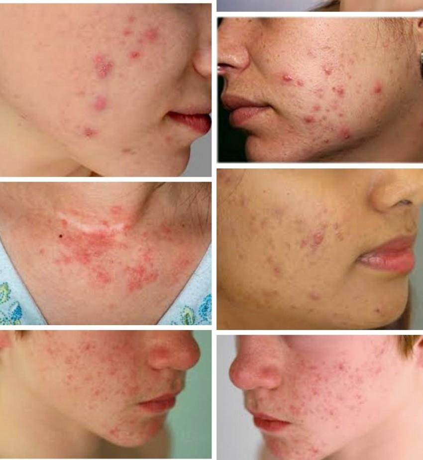 Аллергическая сыпь у детей на руках и ногах фото