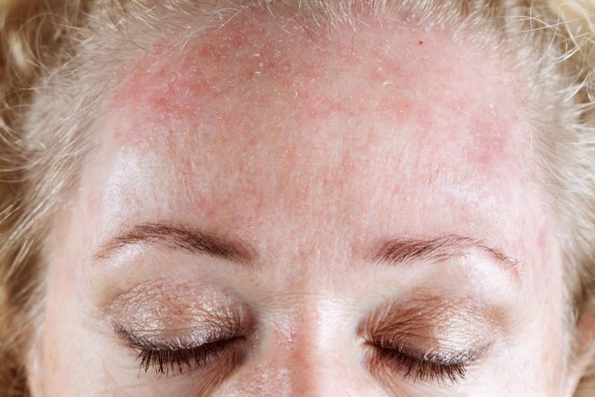 Как лечить аллергическую сыпь