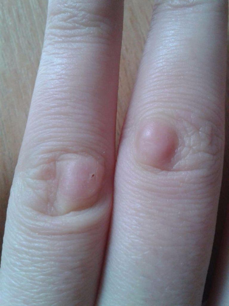 Бородавка на пальце руки картинки