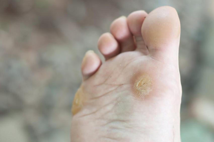 Бородавки на ногах и ступнях: причины возникновения и лечение