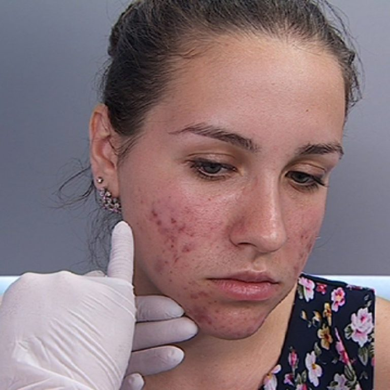 Картинки демодекс на лице