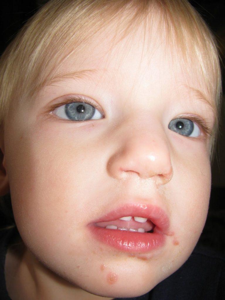 Аллергия на лице у ребенка: фото симптомов, основные причины возникновения и лечение этого недуга