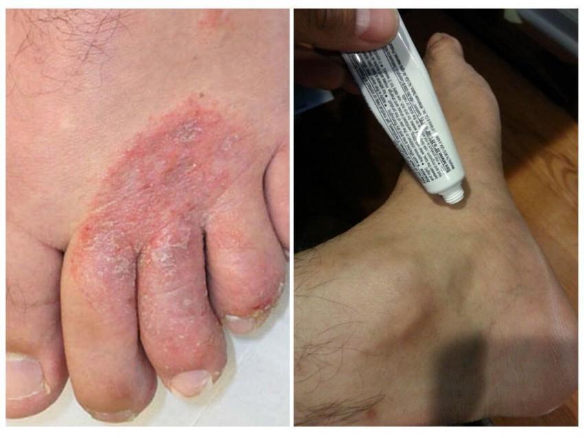 Виды грибка на коже лица и их лечение