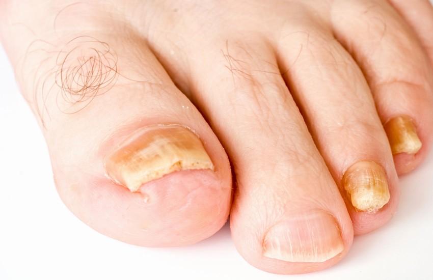 Продолжительность инкубационного периода грибка стопы и ногтей