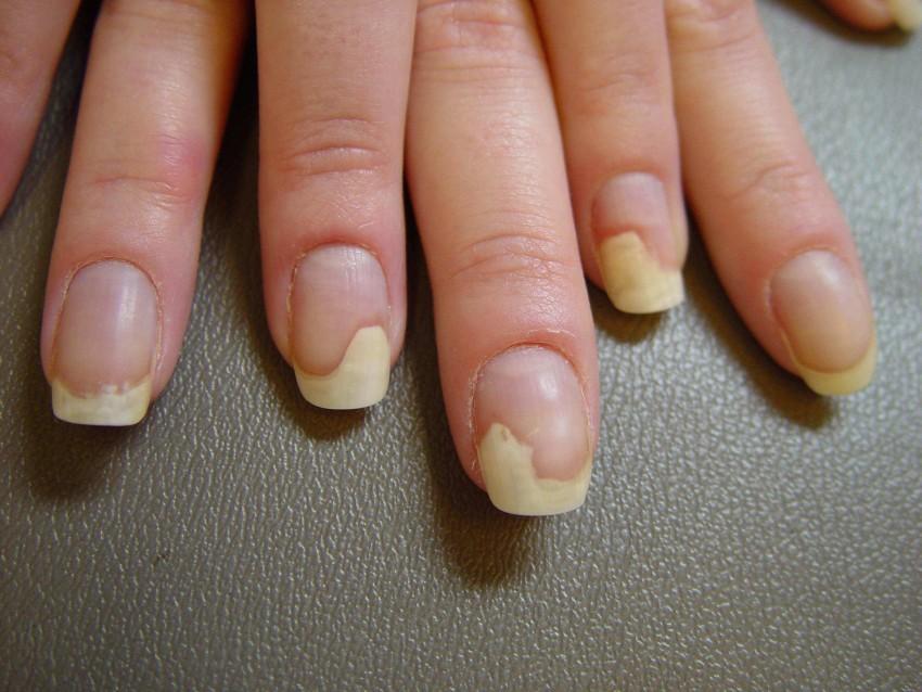 Грибок ногтя на большом пальце ноги: лечение, фото, отзывы