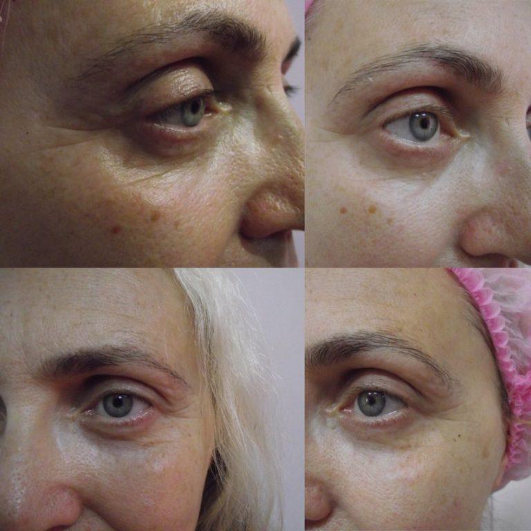 ценовая политика карбокситерапия лица фото до и после правильно