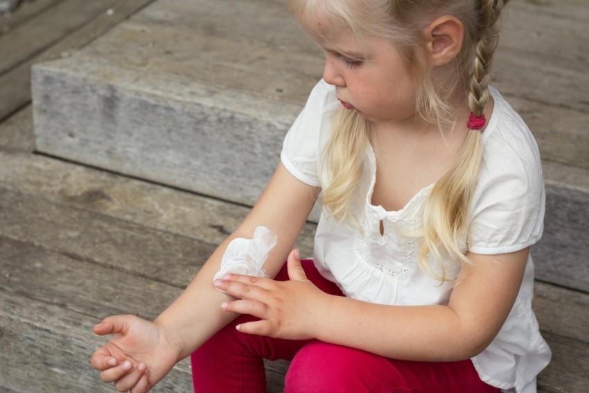 Красный лишай у ребенка фото
