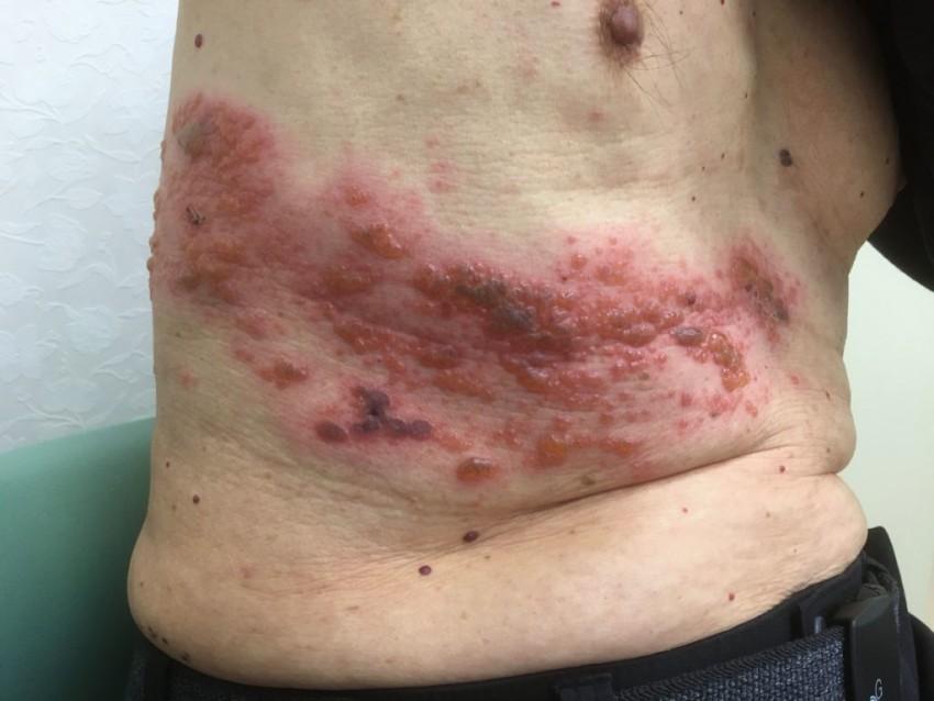 Начальная стадия лишая у человека лечение thumbnail