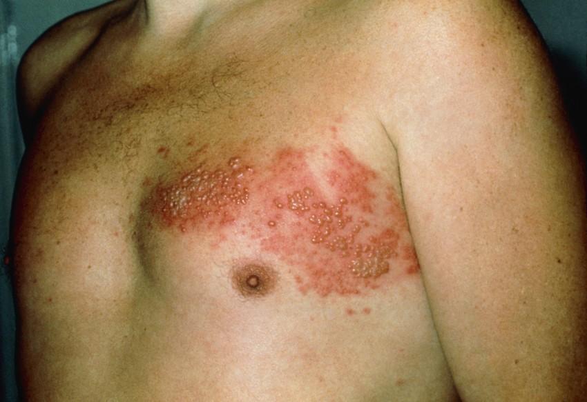 Фото опоясывающего лишая у взрослых на спине