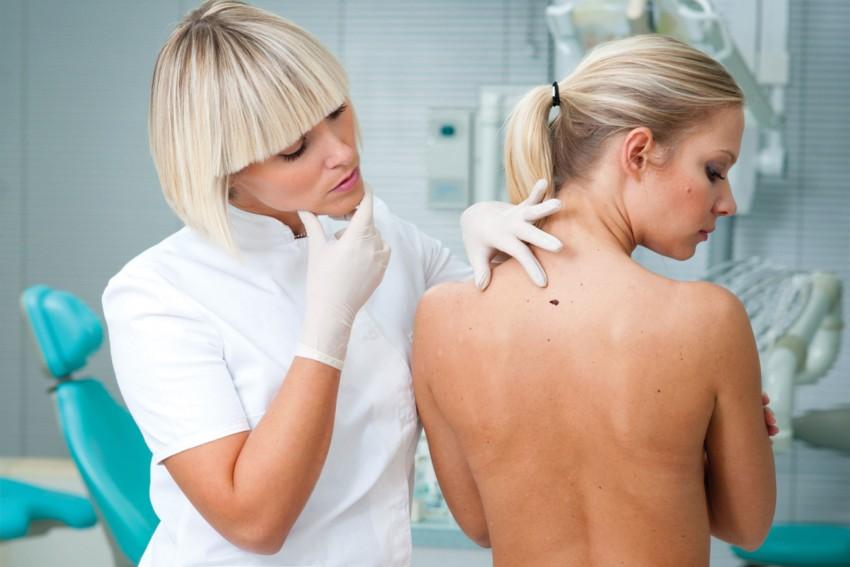 У какого врача проверить родинки на онкологию