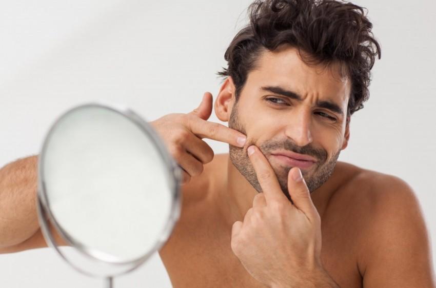 Прыщи на лице причины возникновения у мужчин