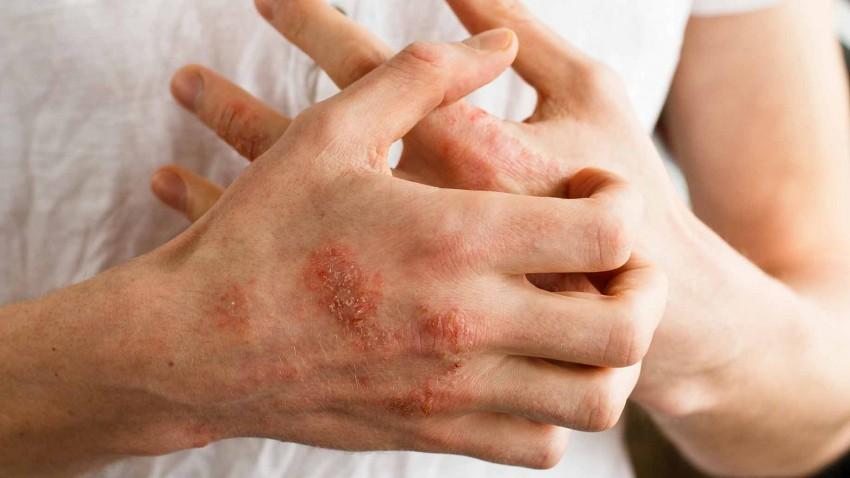 Псориаз лечение в домашних условиях причины возникновения