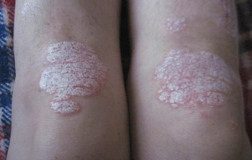 Псориаз между пальцами ног