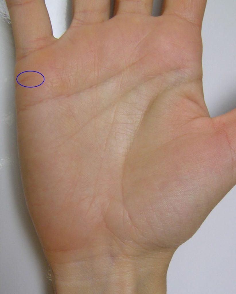 агрессии стороны кольцо безбрачия на ладони фото оказывает фунгицидное действие