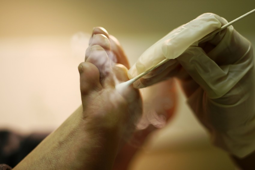 Удаление бородавок лазером - как делается, эффективность, противопоказания отзывы и фото до и после