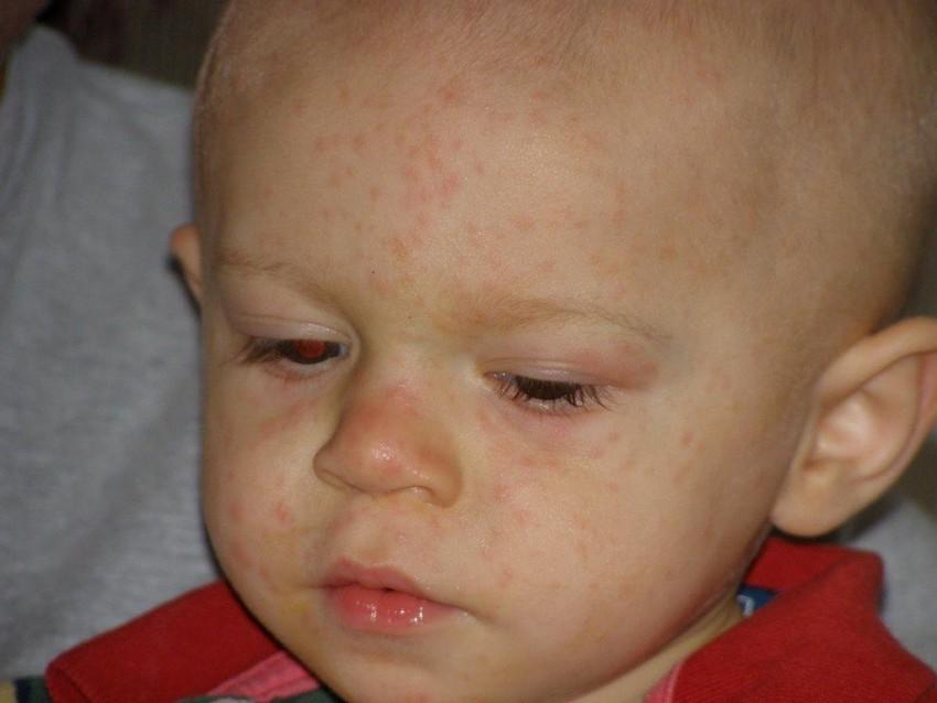 Аллергия у взрослого человека фото