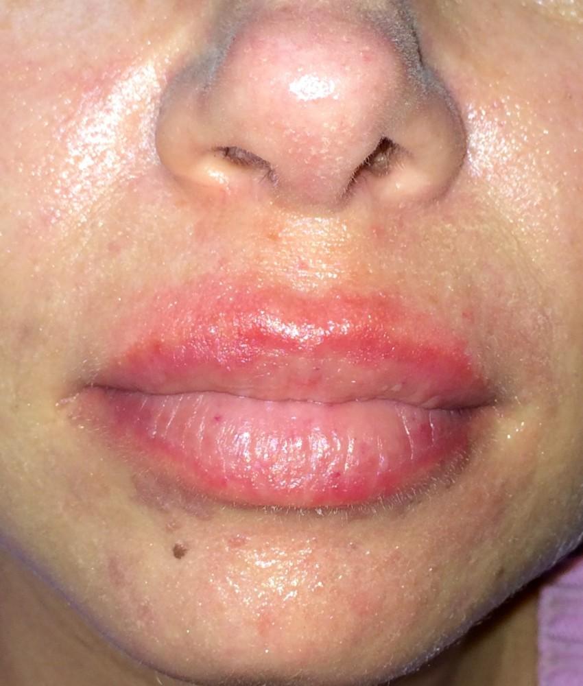 Как выглядит аллергический дерматит у взрослых фото