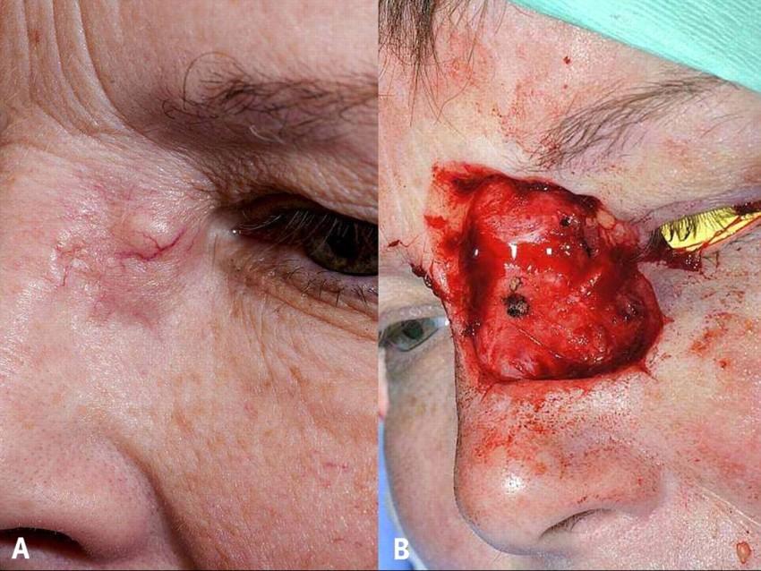 Рак носа картинки