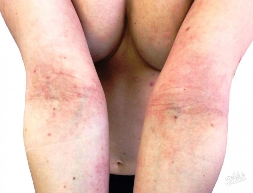 Как вылечить дерматит у детей фото
