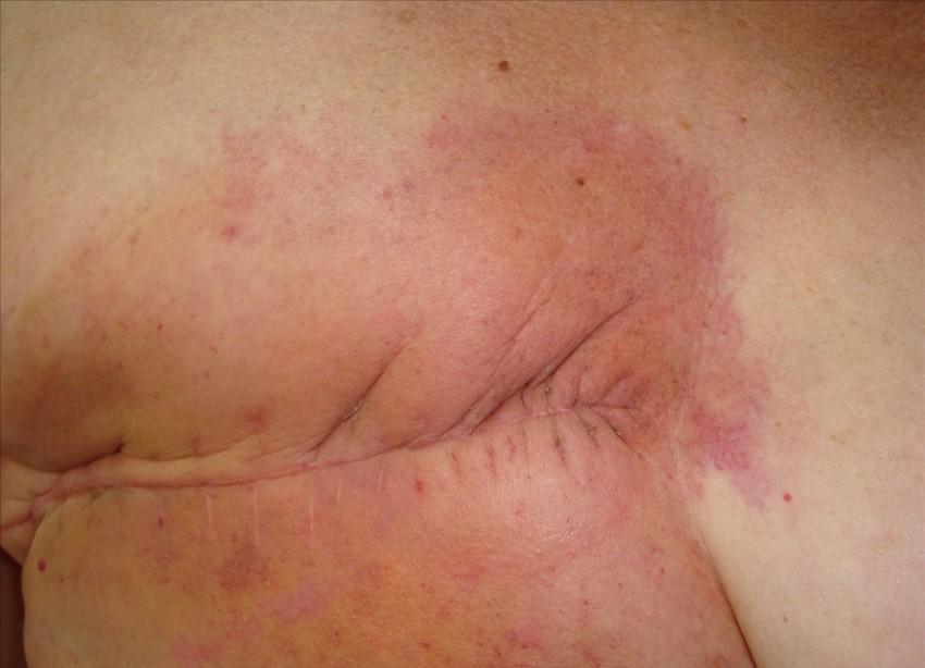 Дерматит на спине у детей причины и лечение фото