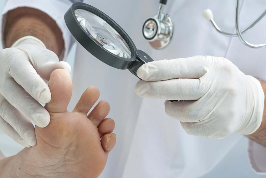 Виды грибковых заболеваний на ногах