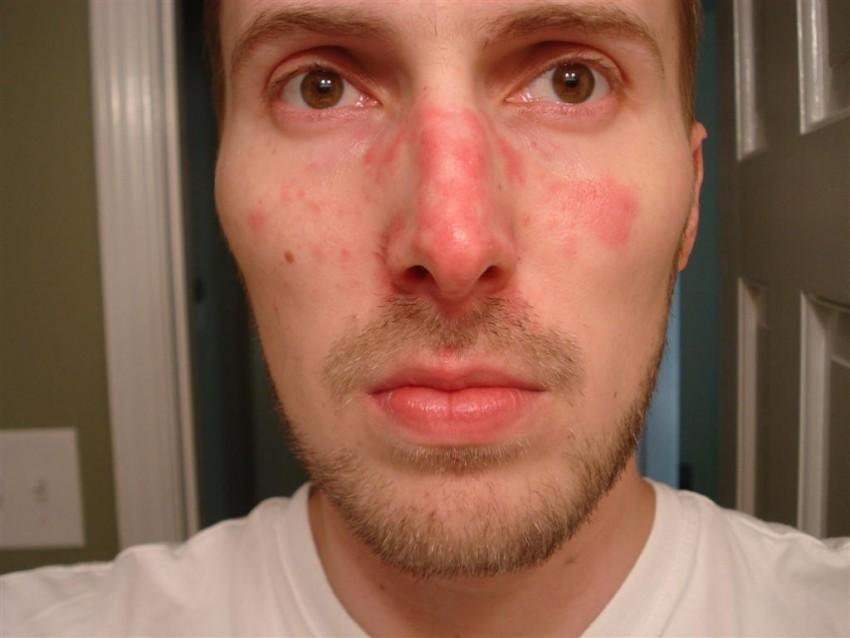 Что делать с лишаем на лице