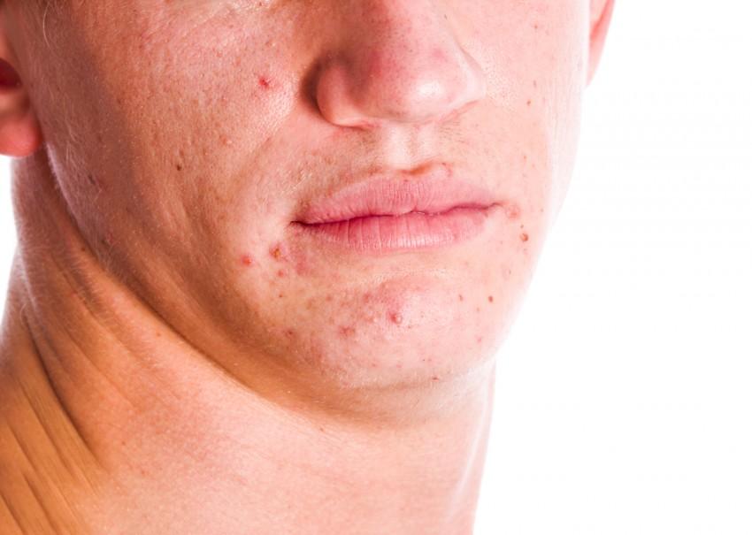 Как выглядит на лице лишай thumbnail