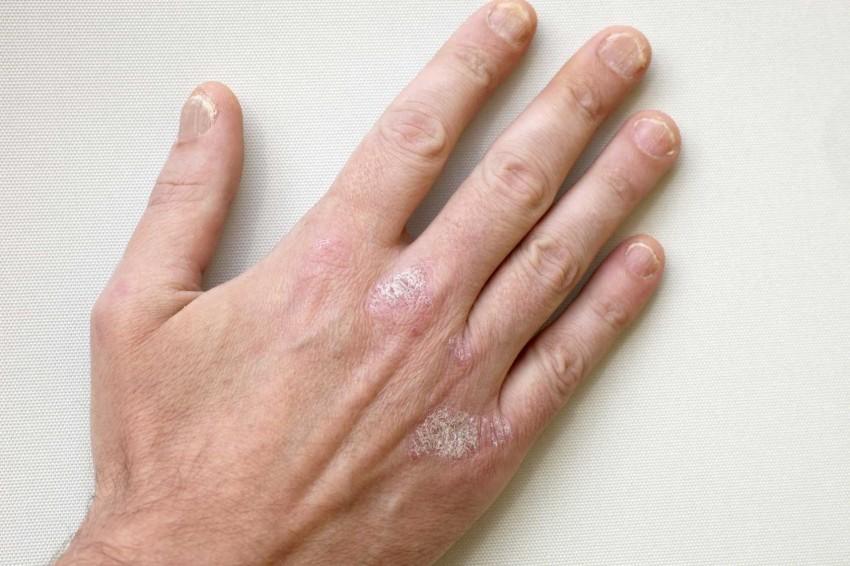 Сыпь на руке в виде маленьких прыщей фото чем лечить