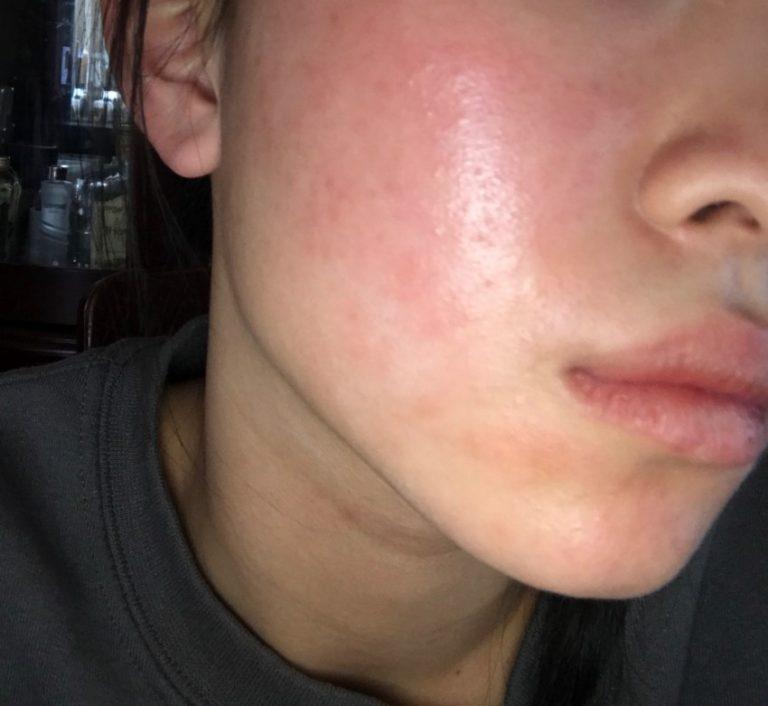 Причины угревой сыпи на лице и щеках, голая телеведущая в новостях видео