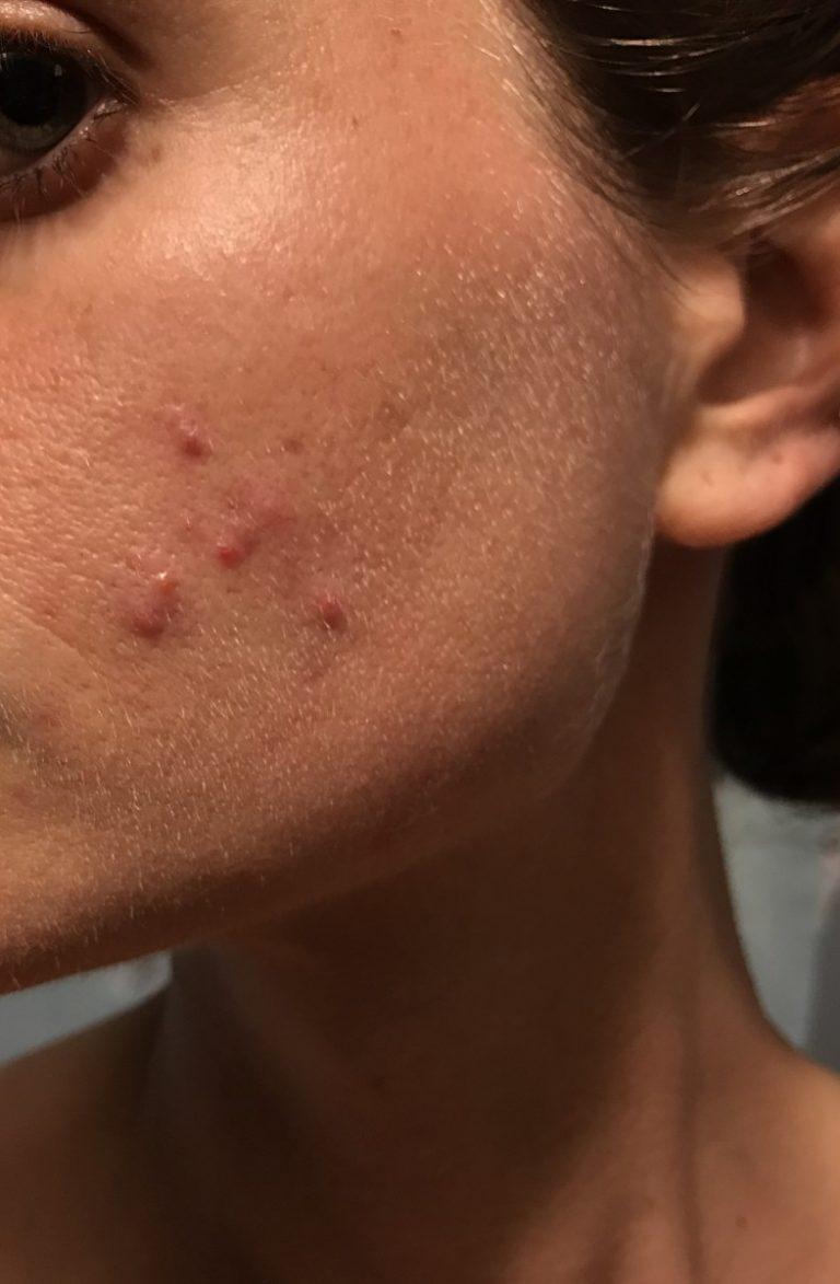 пух на щеках фото орейро сейчас выглядит