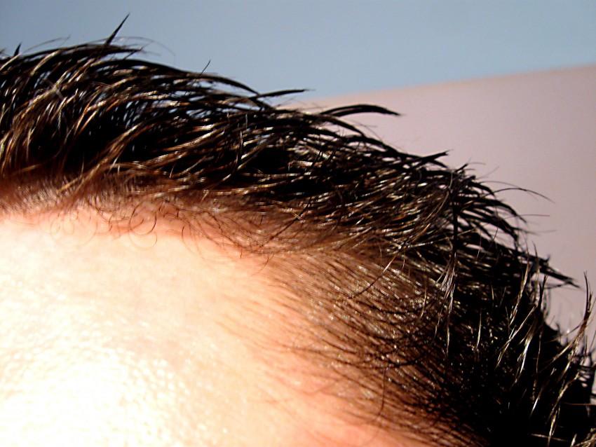 Псориаз на коже головы под волосами фото