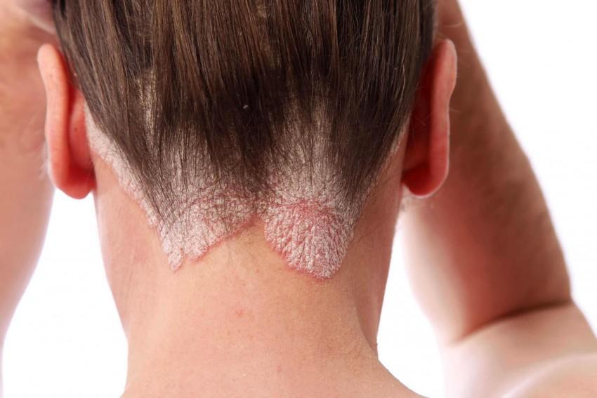 Псориаз на голове: как лечить псориаз волосистой части головы