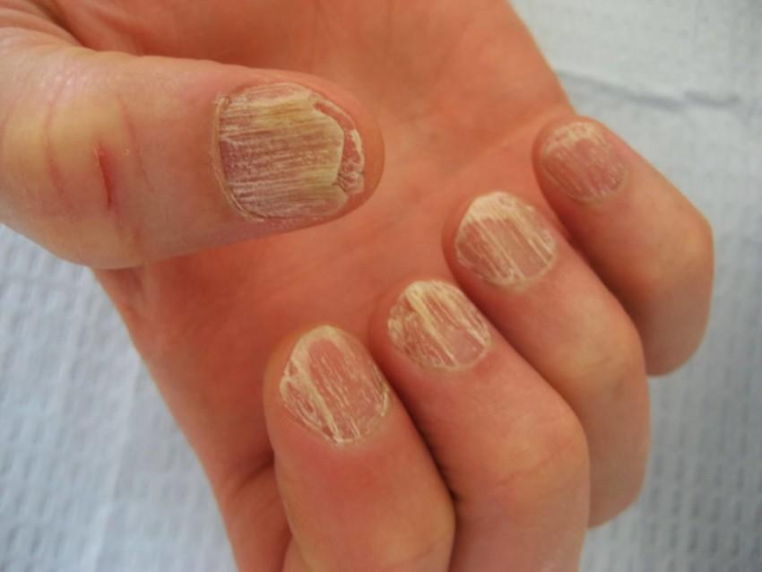 Псориаз ногтей на руках и ногах: описание болезни, методы лечения в домашних условиях, отзывы вылечившихся, фото