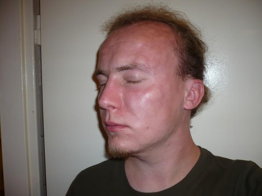 Аллергия на лекарства фото у взрослых