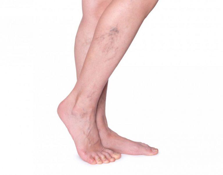 Картинки варикоза ног