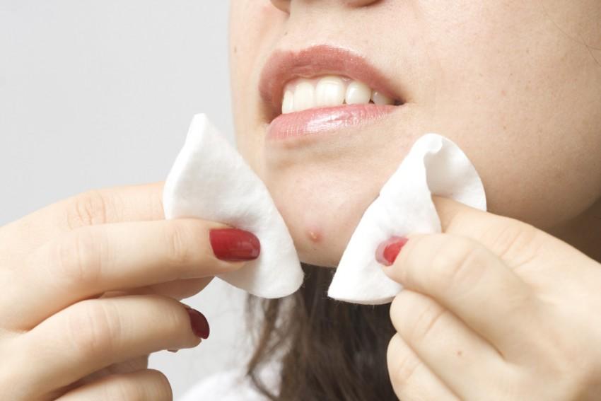 Откуда берутся жировики на лице